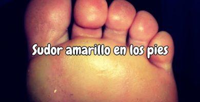 Sudor amarillo en los pies