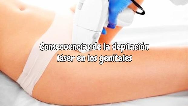 Consecuencias de la depilación láser en los genitales